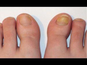Fresh Fingers за нокти, как се приема, как се използва