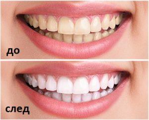 iBright teeth whitening system, съставът - как да използвате?